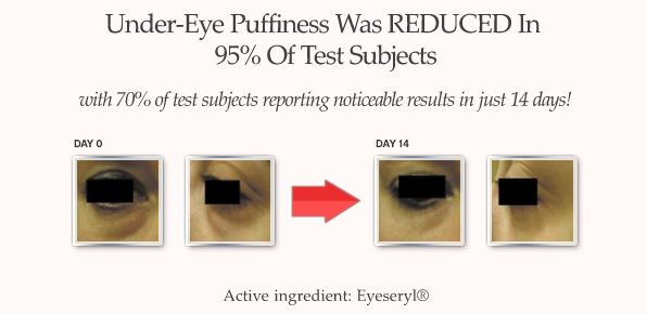 eyelasticity-before-after