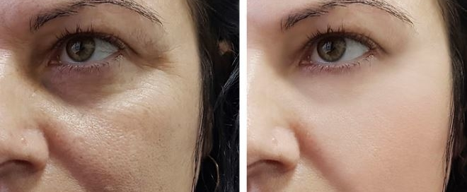 Genf20 Plus Before And After