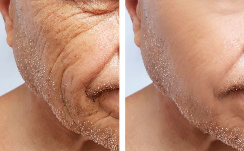 Genf20 Plus Before After Wrinkles