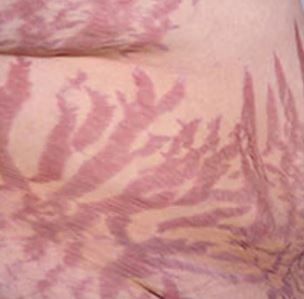 Severe Stretch Marks