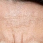 Natural Anti-Wrinkling Remedy for Forehead Discovered